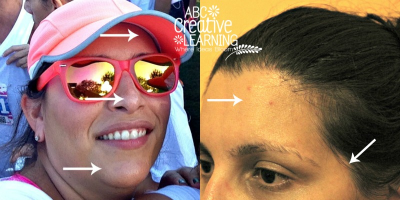 Before Proactiv+ Use